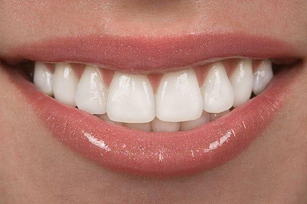 Healthy gum with no gum disease